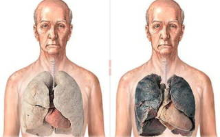 Что происходит при курении