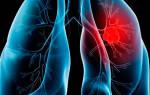 Как начинается рак легких у курильщиков