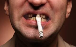 Можно ли курить после удаления кисты