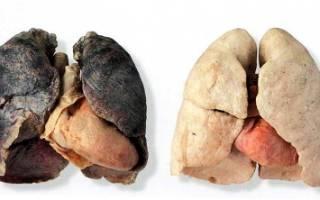Лёгкие курильщика и здорового человека флюорография
