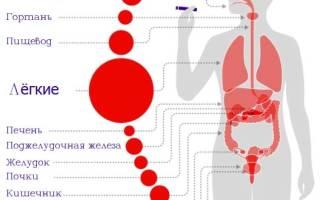 Рак легких и сигареты
