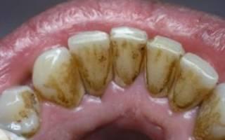 Как очистить зубы от налета курильщика