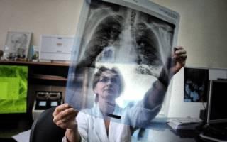 Можно ли курить до флюорографии