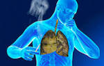 Чем лечить кашель курильщика народными средствами