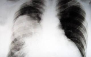 Рак легких от курения