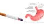 Может ли от сигарет болеть живот