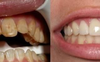 От курения портятся зубы