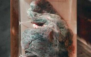 Легкие курильщика со стажем 1 год фото