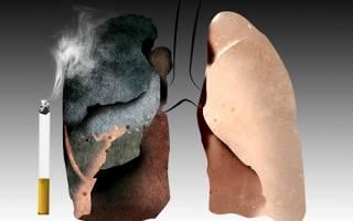 Фото здоровых легких и курильщика