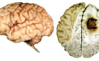 Курение влияет на память человека