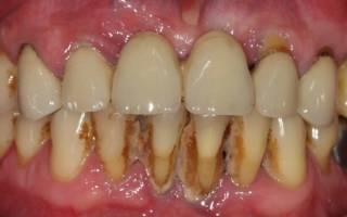 Можно ли курить при открытом зубе