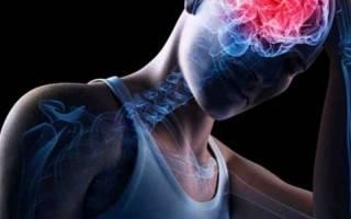 Может ли от сигарет болеть голова