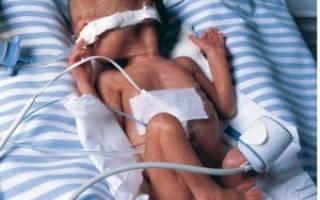 Нужно ли бросать курить во время беременности